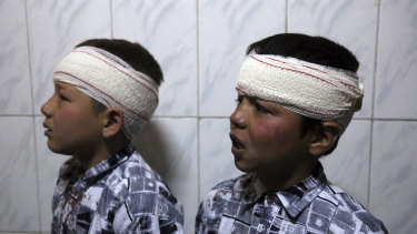 Two brothers wounded by an explosion are wrapped in gauze at a hospital in Kabul, Afghanistan, in March.