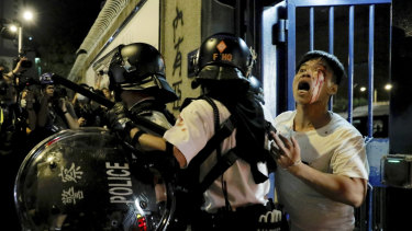 A bleeding man is taken away by policemen after being attacked by protesters outside Kwai Chung police station in Hong Kong.