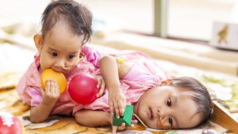 Nima and Dawa play together ahead of their surgery.