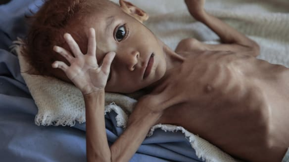 More than 85,000 Yemeni children may have died from hunger, aid group says