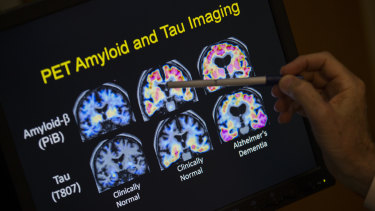 PET scan results in a study on Alzheimer's disease.