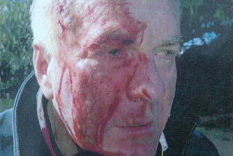 Chris O'Neill after the attack by the Stephens brothers.