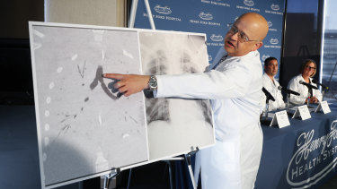 Dr Hassan Nemeh shows areas of a patient's lungs at Henry Ford Hospital in Detroit, US, after a double lung transplant for a patient whose lungs were irreparably damaged from vaping.