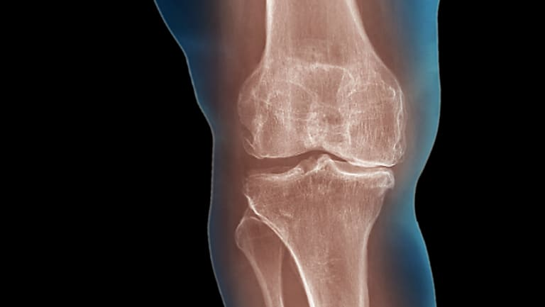GPs have issued a warning about waste of money on useless treatments for knee pain.