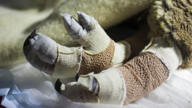 Princess Fiona's burned feet are wrapped in layers of bandages and dressings.