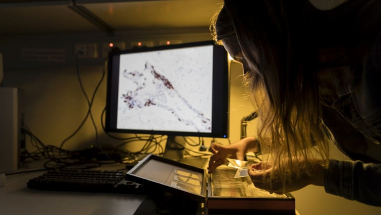 A researcher examines a slide with brain tissue from a person with schizophrenia.