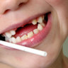 Most families eligible for child dental rebate refuse to take bite