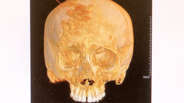 The skull found at Sandy Point.