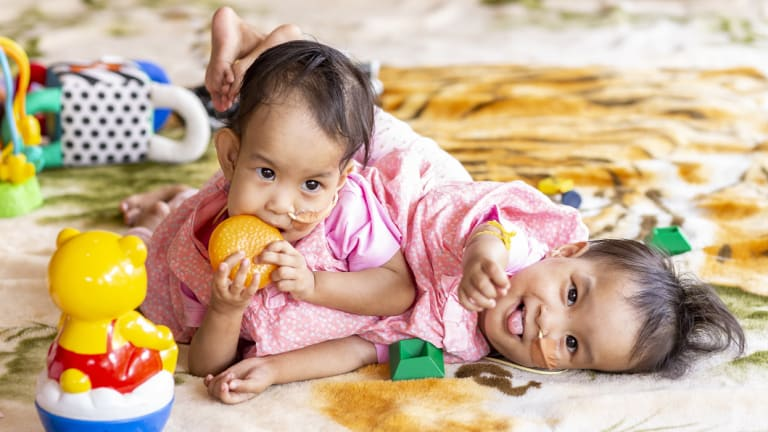 Conjoined twins Nima and Dawa before their surgery.