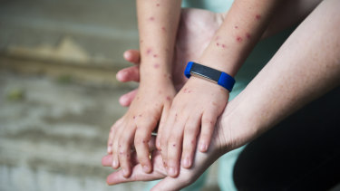 Samara Zeitsch holds her daughter's hands showing the large number of wasp stings she received from the attack.