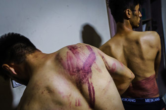 Journalists from the Etilaatroz newspaper, Nemat Naqdi, 28, a video journalist, left and Taqi Daryabi, 22, video editor, undress to show wounds sustained after Taliban fighters tortured and beat them while in custody, after they were arrested for reporting on a women's rights protest in Kabul.