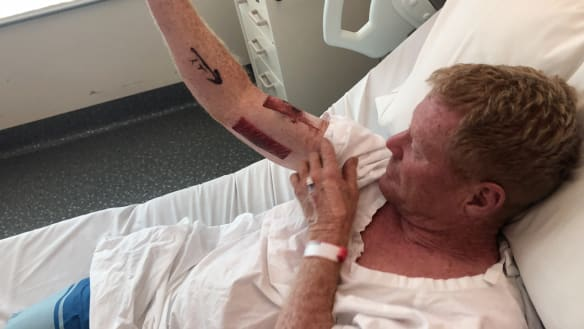 'I started hitting it and punching it to get it off': 20 stitches after shark attack