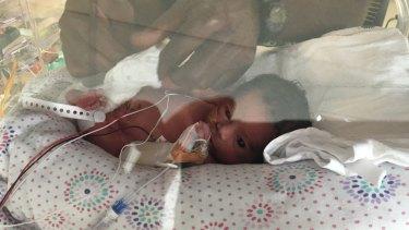 Zoe Charles in Nepean Hospital's NICU.