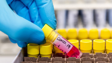 More Australians will be tested for coronavirus after the government expanded the criteria of eligible candidates.