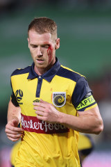 A bloodied Oliver Bozanic of Central Coast.
