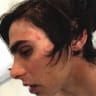 Arrested for someone else's crime, a teen was left badly injured