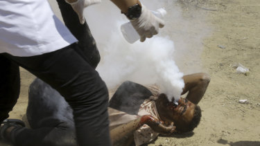 A Palestinian medic treats a protester shot in the face with a teargas canister on Friday.