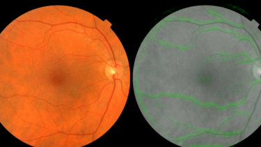 A scan of the back of the human eye (left), and how Google's algorithm sees it. The green highlights are the parts the algorithm found most helpful in predicting blood pressure.