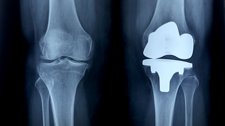 GPs have been issued new guidance on treating knee pain.
