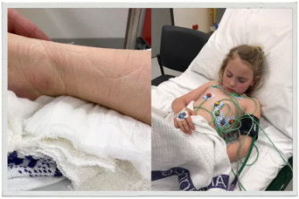 The area of the bite on Poppy's ankle; Poppy was in hospital for four days.