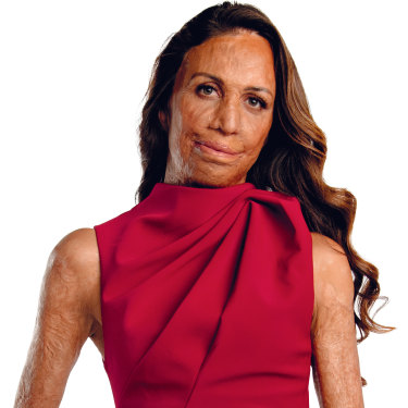 """Turia Pitt: """"My injuries were horrific. But what gave me hope was, once I was alive, there was a chance for me to get better and improve."""""""