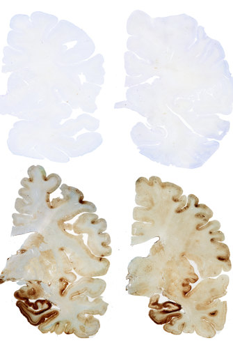 "The top two brain cross-sections are a healthy ""control"" brain while the sections below show a brain with CTE."