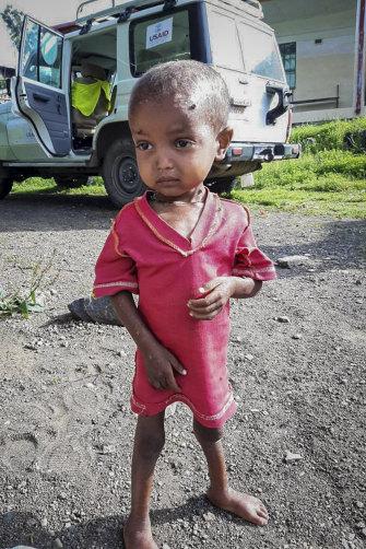 A severely malnourished child at the Ayder Referral Hospital in Mekele.