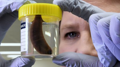 Bloody wonders: how Sydney's last two leeches saved a man's severed fingers