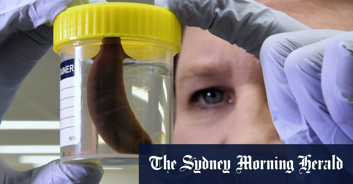 Bloody wonders: how Sydney's last two leeches saved a man's severed fingers – Sydney Morning Herald