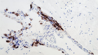 The brown-coloured cells are the marcophages, which shouldn't be in the brain tissue.