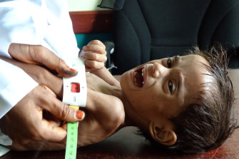 Ahmed Abdo Salem, a two-year-old Yemeni displaced by the conflict and weighing only five kilograms is measured at a health clinic in Yemen's war-ravaged western Hodeida province last month.