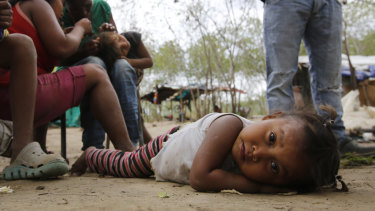 Along the banks of the Tachira River dividing Colombia and Venezuela, many of the indigenous children have distended bellies from malnutrition or parasites.