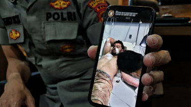 Kuta police show a photo of Nicholas Carr at Siloam Hospital.
