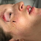 The gash on her eyebrow after her head hit the boot of the car.