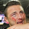 'You could lose your eye': Sam Burgess opens up on grand final injury
