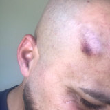 A lump to his head after the December 9 incident.