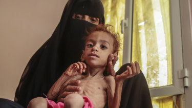 A woman holds her malnourished son in Hajjah, Yemen last month.