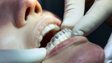 Invisalign clear teeth aligners being fitted on a patient.