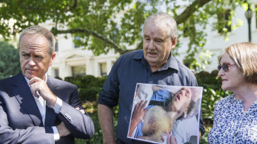 Paula and Peter Curotte hold a photo of Alexander's bruises as they stand with Bill Shorten.