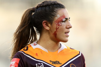 Boyle was told the surgery would mean a minimum nine months off elite union and league. Even then, there was no guarantee she would ever return to 100 per cent form.