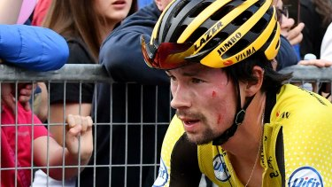A battered Primoz Roglic reaches the finish line of stage 15, after crashing.