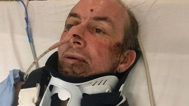 Stuart after his accident.