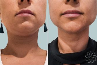 Before and after images promoting Ulfit treatments on the chin and neck.