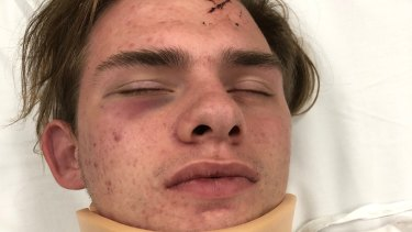 Autistic teen Jayden D'Abaco after he was attacked on Saturday night