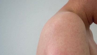 'Unprecedented' measles outbreak on Brisbane's south triggers warning