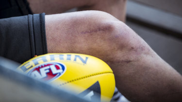 Johnson has had six knee reconstructions and was told he might never play footy again. But he's now back on the field.