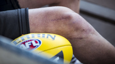 Johnson has had six knee reconstructions.