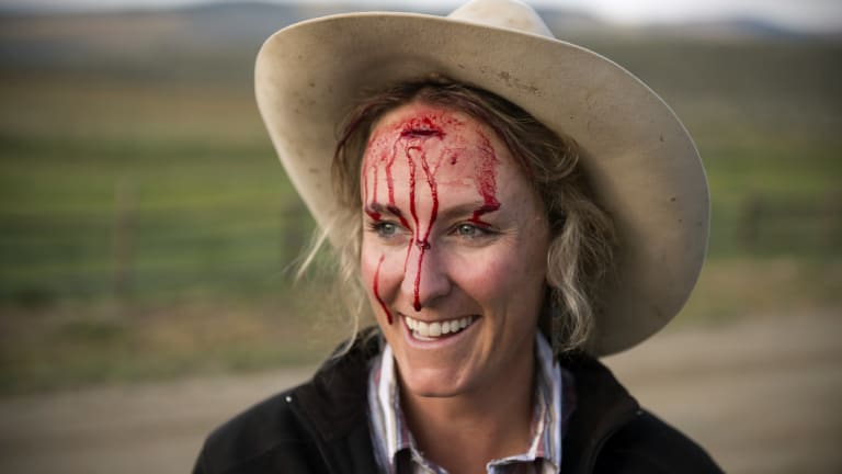 Caitlyn Taussig after a cow kicked a gate, splitting open her forehead, on the family ranch in Kremmling, Colorado. She helps run the ranch with a cadre of cowgirls, including her mother and sister.