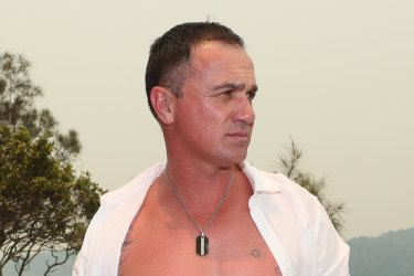 Shannon Noll, and the scar from his operation.