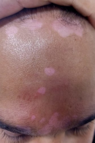 Afravi suffers from psoriasis.